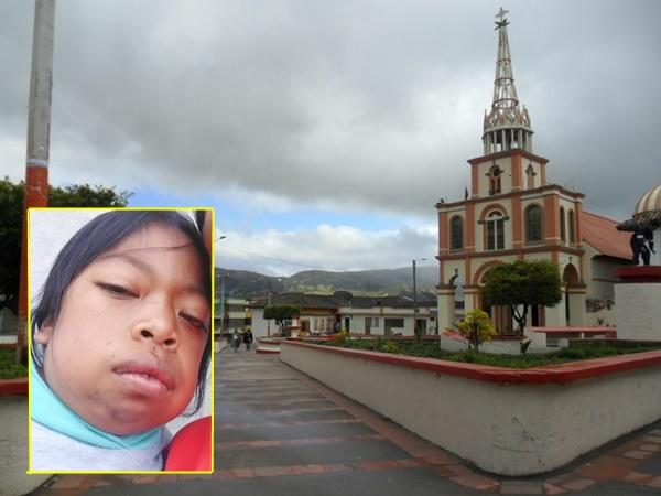Natali tiene mucopolisacaridosis y necesita medicamento para vivir, denuncian le han negado el tratamiento - Noticias de Colombia